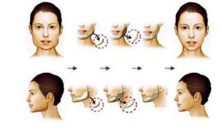 磨骨手术的流程 多久恢复期
