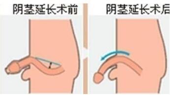 韩式微创阴茎延长术的优点