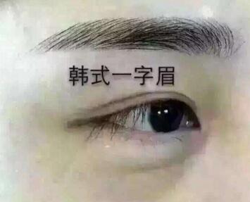 眉毛种植手术 提升整体气质