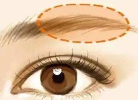 眉毛种植的效果是怎样的