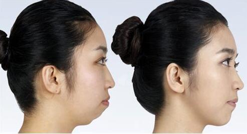 下颌缘提升术的术后注意事项