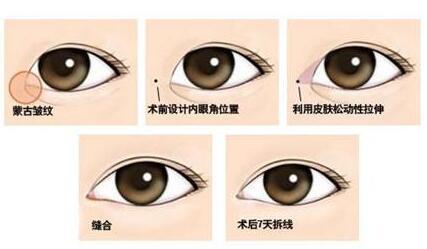 近视眼能做开眼角手术吗