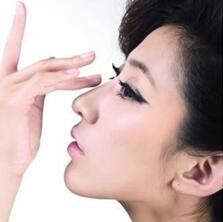 耳软骨隆鼻尖的效果理想吗