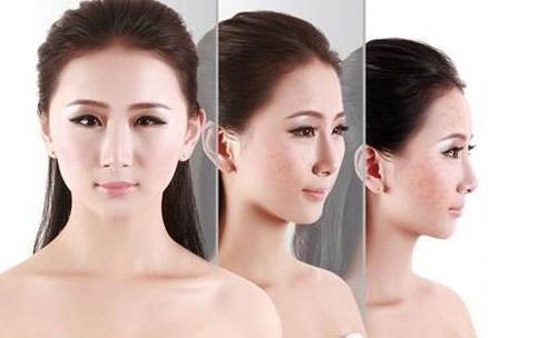 做皮秒激光祛斑美容会淡化疤痕吗