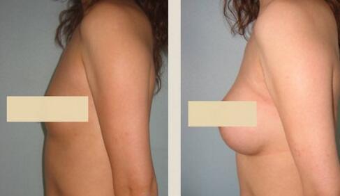 自体脂肪隆胸手术的优点有哪些
