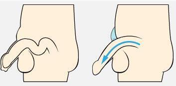 阴茎短小怎么办 矫正手术怎么做