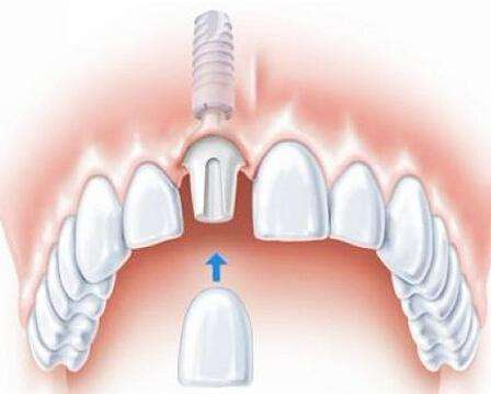 种植牙好不好 种植牙的寿命是多久