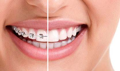 牙齿矫正需要多少钱 需要多久