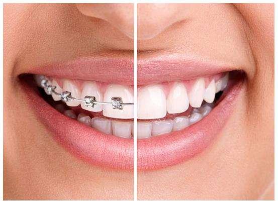 牙齿矫正什时候做好