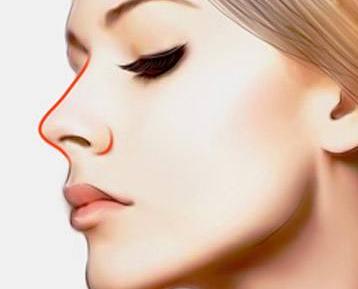 自体软隆鼻子 增强个人面部美感