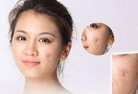 做激光去除疤痕的价格 术后怎么护理