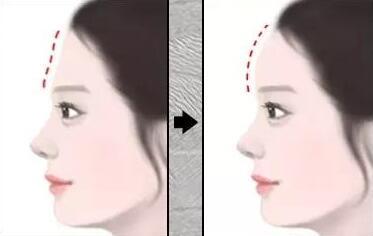 额头整形方法有哪些 该不该做额头整形