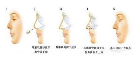 鼻子缺陷 取材自体软骨隆鼻巧夺天工