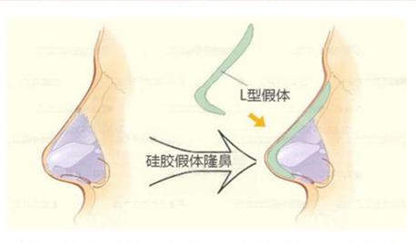 齐齐哈尔硅胶假体隆鼻 轻松打造高鼻梁