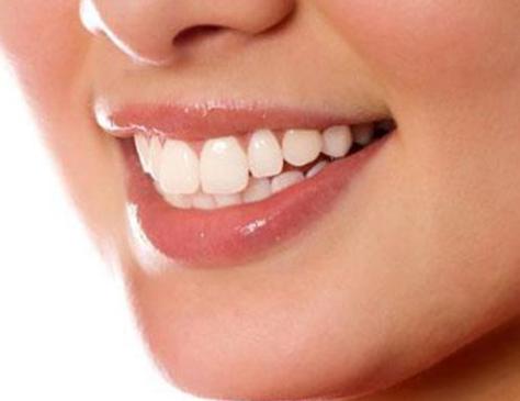 烤瓷牙效果如何 能和真牙一样吗