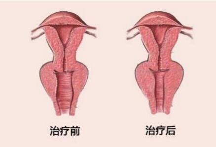 缩阴道整形术 提高性生活质量