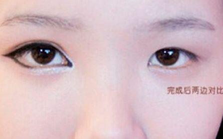 <font color=red>开内眼角</font>手术会留下留疤吗 术后要注意什么