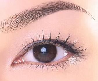 做全切双眼皮后怎么消肿 多久恢复期