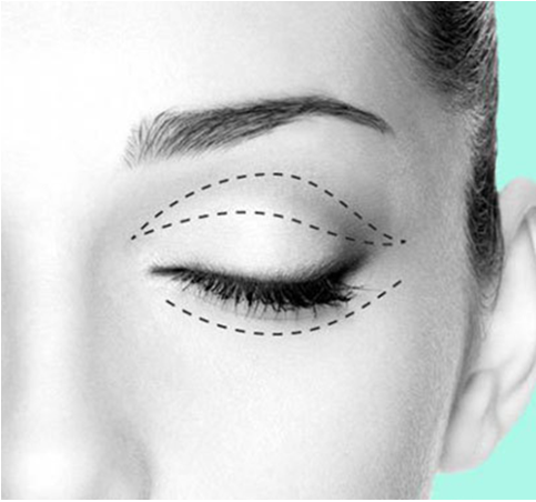 了解一下 最适合做双眼皮的几个类型