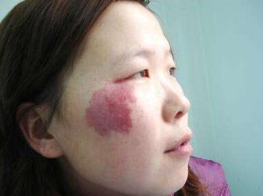 北京紫洁俪方鲜红斑痣怎么治疗