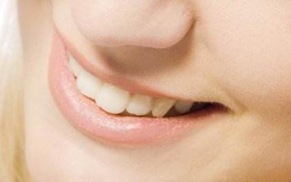 牙齿矫正 还你美丽笑颜