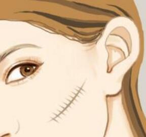 西安凯韵激光祛疤 还你漂亮脸庞