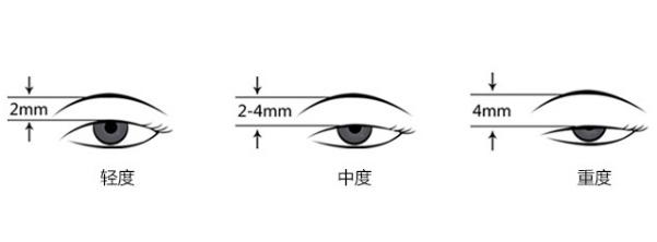 上眼脸下垂矫正术后这样做 从此告别小眯缝眼