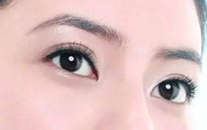 贵阳双眼皮修复 双眼皮失败后最好的选择