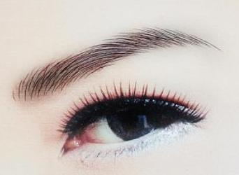 开眼角手术的效果 使人精神振奋