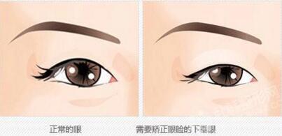 如何眼脸下垂矫正 恢复眼部的健康