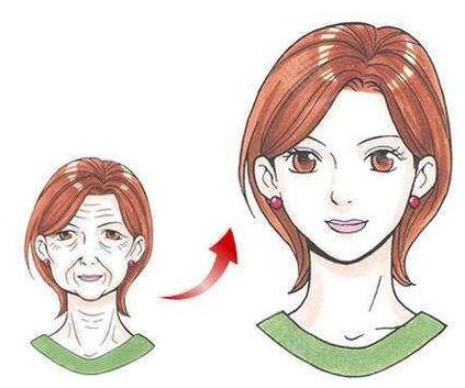 东莞缔美玻尿酸去抬头纹 抹平岁月痕迹