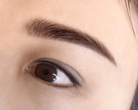 眉毛种植多少钱 会留疤吗