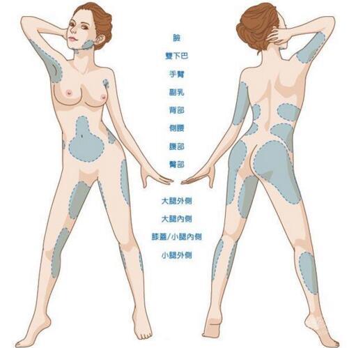 """手臂吸脂手术的过程 吸掉你的""""蝴蝶袖"""""""