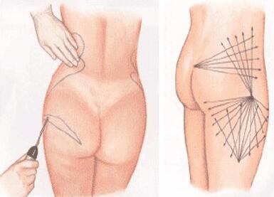 臀部做吸脂的注意要点 让你更加风情万种