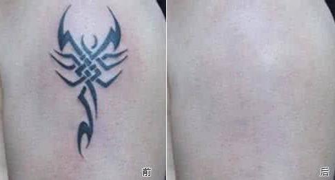 海南瑞韩激光洗纹身 恢复你的光嫩肌肤