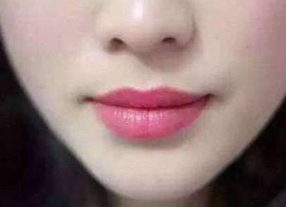 唇裂修复安全可靠吗 修复效果好吗