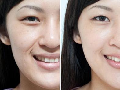 伊维兰注射除皱 让你的皮肤更光滑和紧致