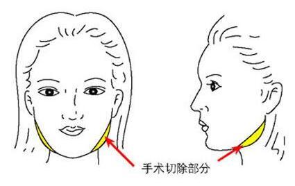 成都悦己整形下颌角整形过程 让你拥有满意的脸型