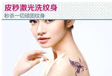 """激光洗纹身的费用多少 有志青年斗""""纹身"""""""