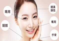电波拉皮除皱优势 恢复年轻容貌