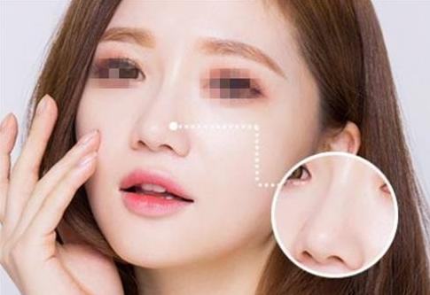北京黄寺美容鼻子价格 假体隆鼻贵吗
