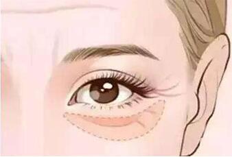 激光祛除黑眼圈有何优势 效果显著吗