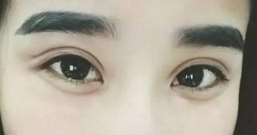 无痕明眸翘睫术 实现双眼皮的梦想