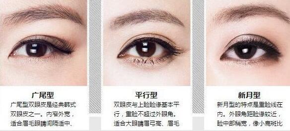 超龙整形哈尔滨双眼皮修复怎么样 双眼皮手术失败因素
