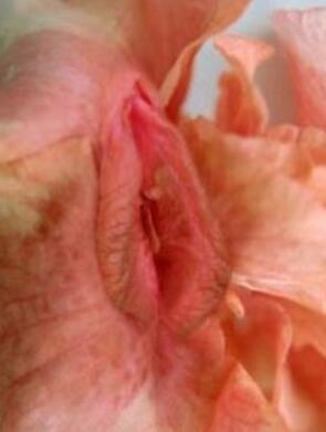 小阴唇整形矫正 提高性生活质量