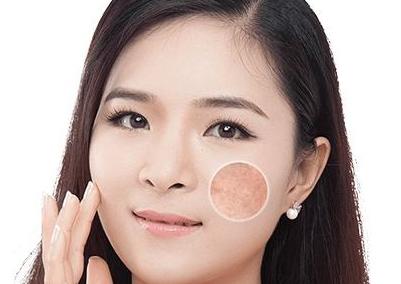激光去痘三大优势 改善皱纹和皮肤弹性