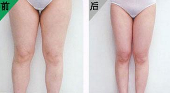 影响吸脂瘦腿效果因素 体现动感曲线