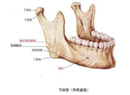 下颌角整形的手术过程 再造微笑曲线美