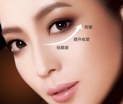 吸脂祛眼袋 重新找回动人的双睛