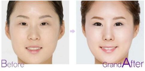 上睑下垂矫正术哪些方法 还您眼部紧致肌肤